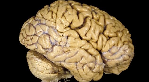 Cervello, la chemioterapia causa problemi cognitivi ?