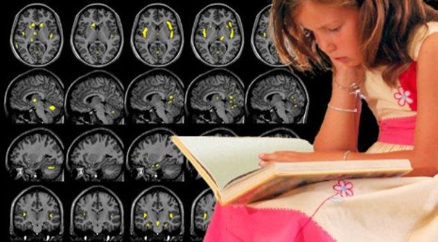 Cervello, la percezione visiva delle parole sostituisce la fonologia ?